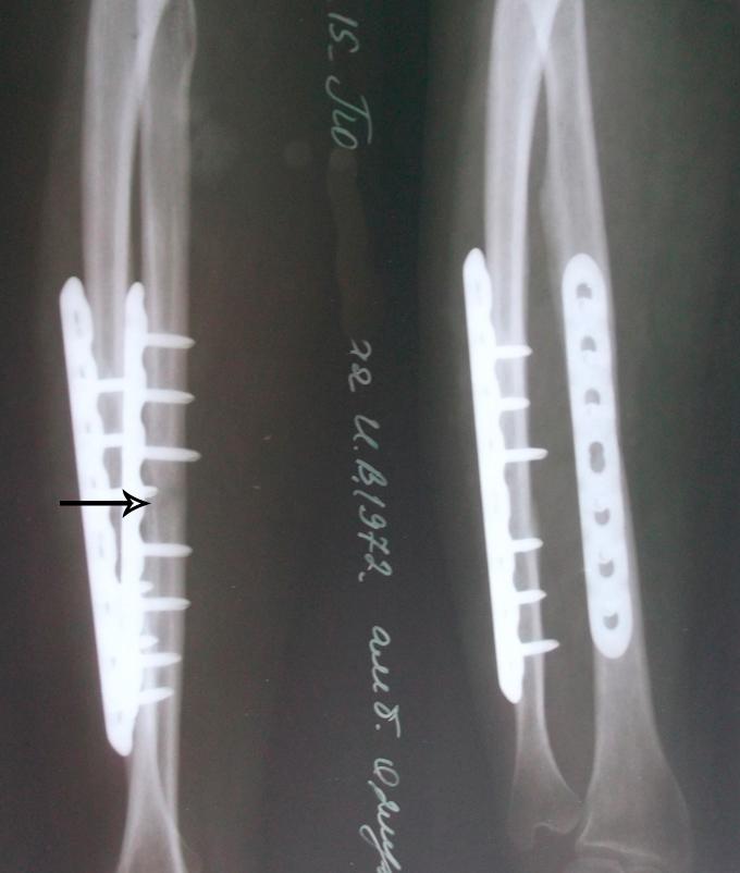 Сращение кости после увт
