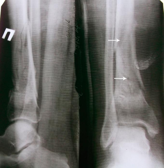 Снимки голени до проведения РУВТ, оскольчатый перелом ББК