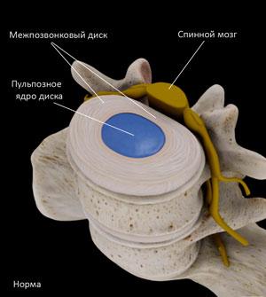 Межпозвонковый диск и пульпозное ядро в норме.