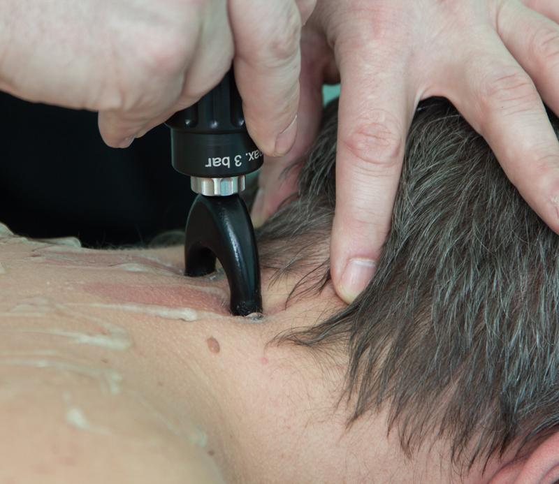 Лечение шейной мигрени методом ударно-волновой терапии. Специальные насадки  Spine-actor для лечения проблем позвоночника.