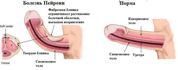 Лечение болезни Пейрони ударно-волновой терапией