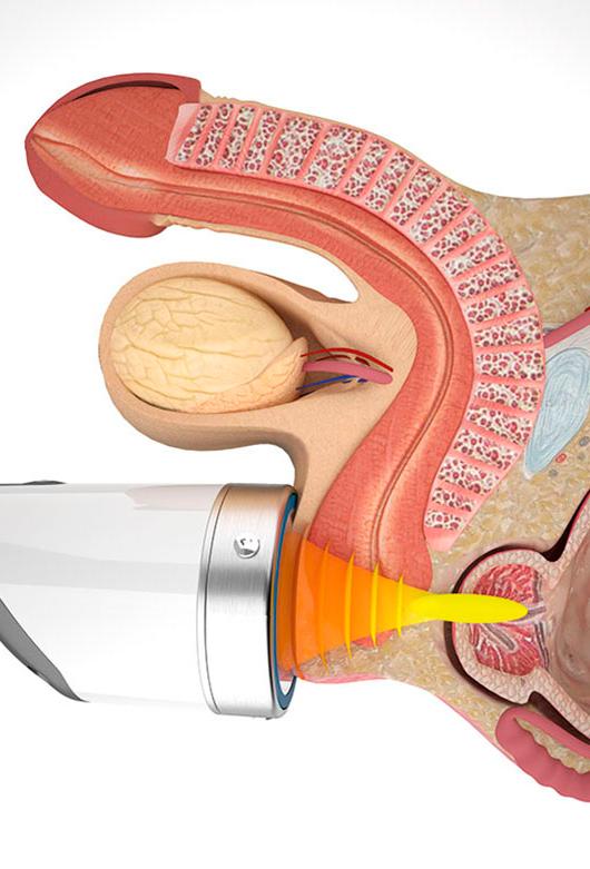 Лечения прополисом простатита видео