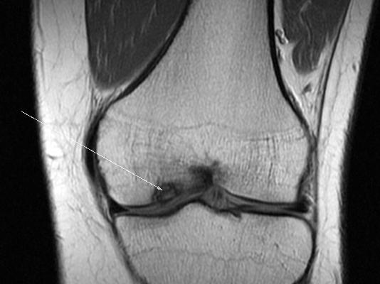 Рассекающий остеохондрит коленного сустава мрт