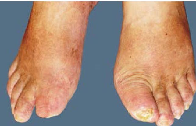 Диабетическая гангрена пальцев стопы 1