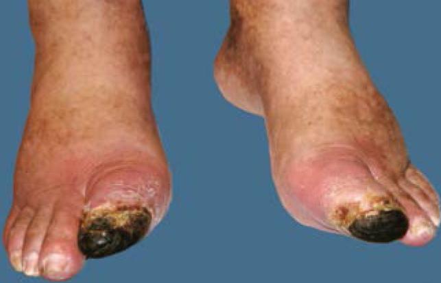 Диабетическая гангрена пальцев стопы