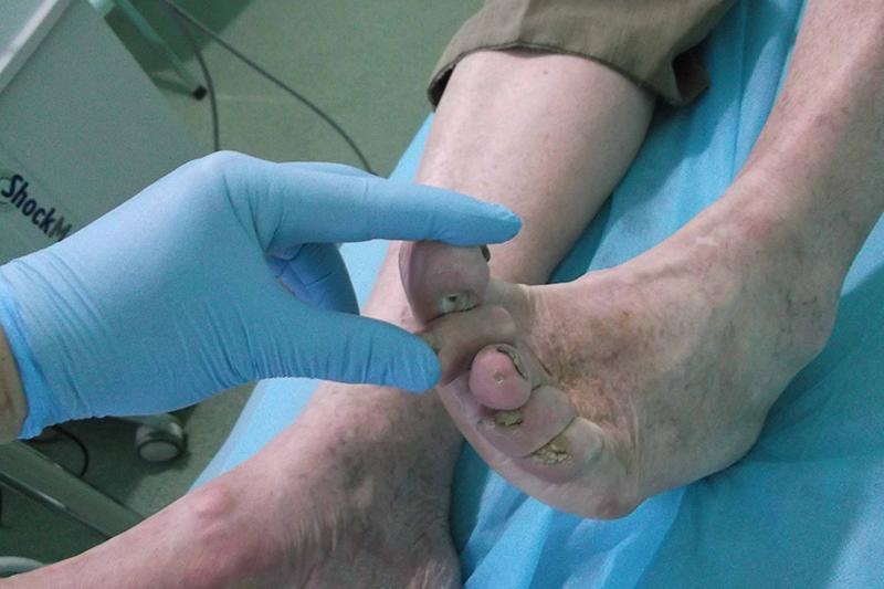 Диабетическая стопа. Язва большого пальца стопы. До лечения ударной волной.