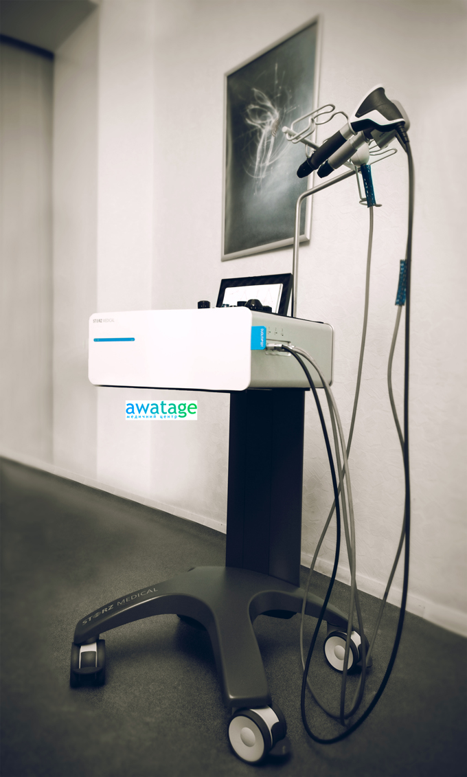 Аппарат ударно-волновой терапии Duolith SD1 Ultra, блок RSWT