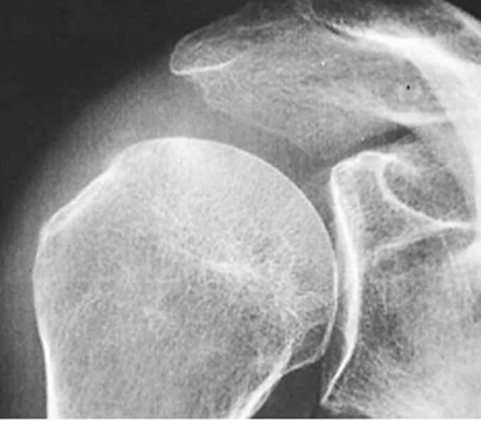кальцинат в плече случай 1 после лечения