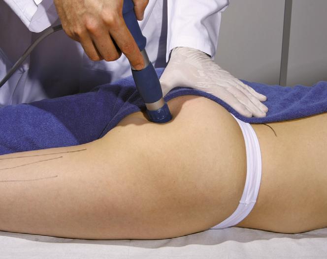 Процедура ударно-волновой терапии при синдроме грушевидной мышцы.