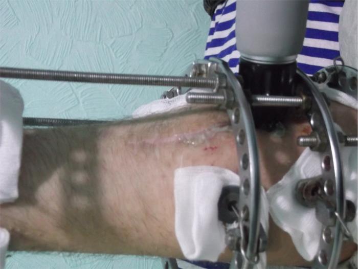 Замедленная консолидация перелома, лечение радиальной ударно-волновой терапией аппарат Duolith Ultra. Металические фиксирующие конструкции не являются противопоказанием для проведения процедур.