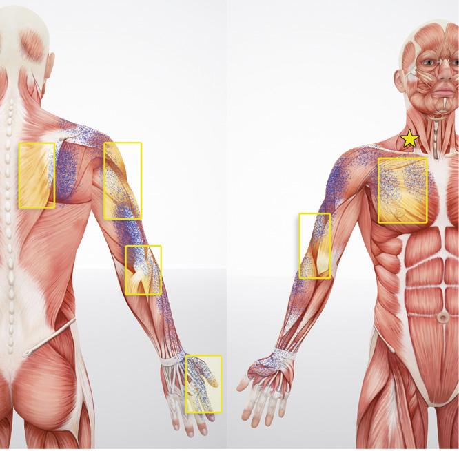 Триггерные точки в мышцах руки и иррадиация боли