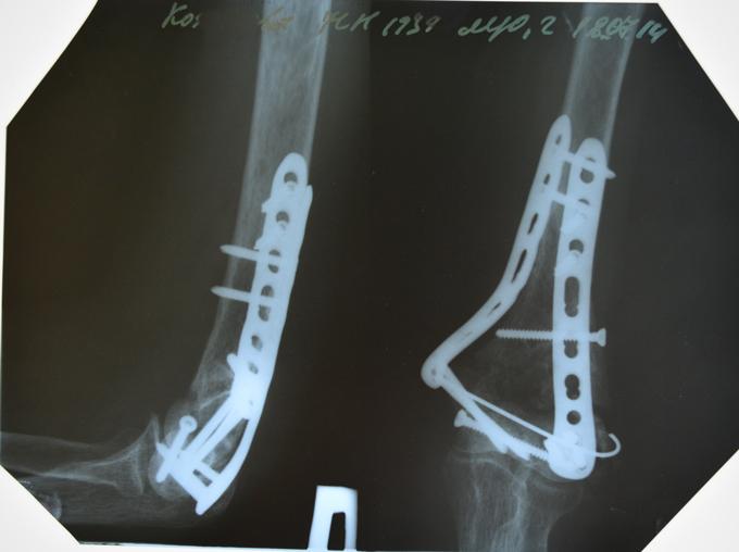Перелом дистального метаэпифиза плечевой кости. Стабилизированы обломки при помощи пластин. После операции не наблюдается сращения обломков кости. Состояние до проведения УВТ.
