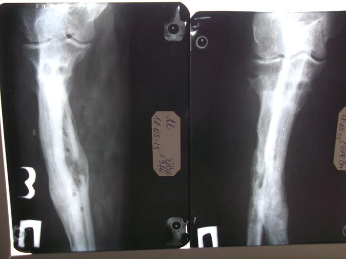 После проведения курса радиальной ударно-волновой терапии произошла консолидация кости, были сняты металлические конструкции.