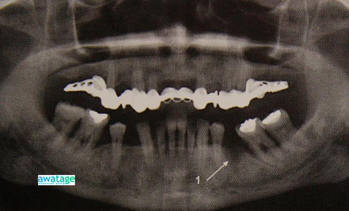 Состояние кости после удаления зуба до лечения ударно-волновой терапией.
