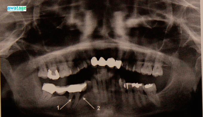 Состояние зуба и его корней до лечения ударно-волновой терапией.