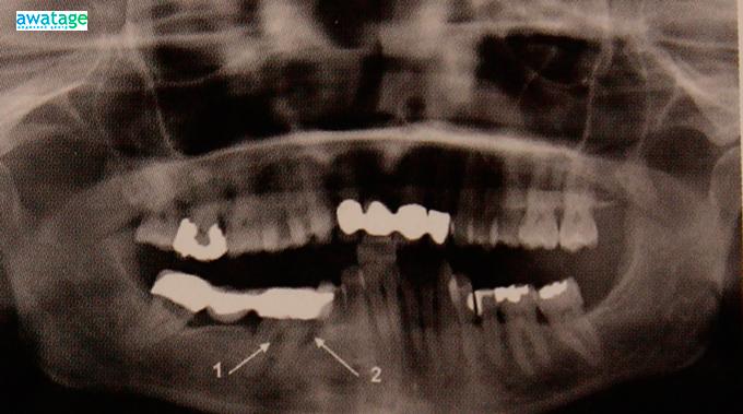 Состояние кости около зуба после проведения 4 сеансов ударно-волновой терапии.