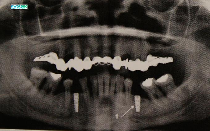 Успешное протезирование зуба после проведенной ударно-волновой терапии