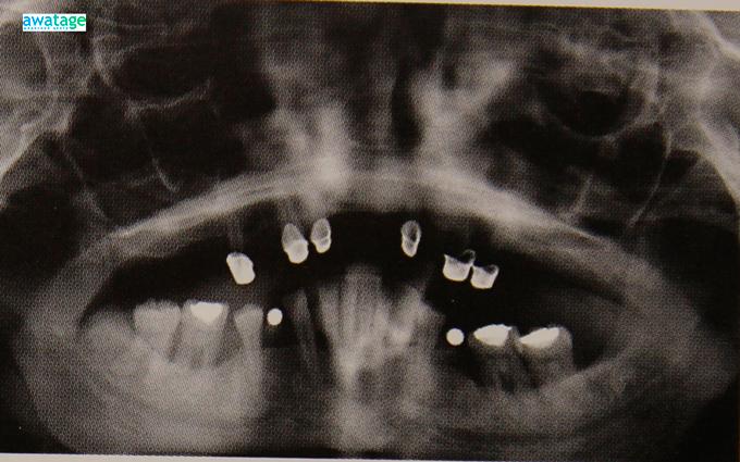 Состояние кости после проведения курса ударно-волновой терапии. Видно утолщение кости.