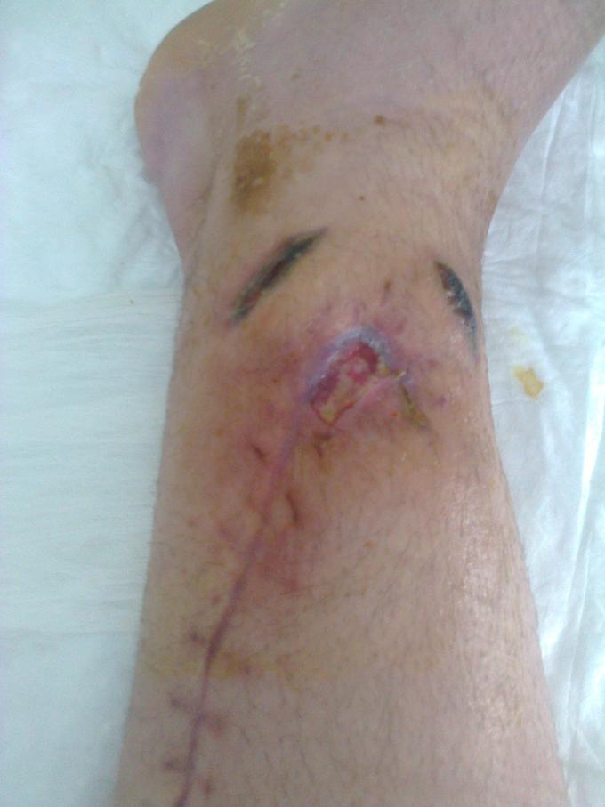 Пациент после оскольчатого ранения голени с травмой костей голени. После хирургической обработки раны. Наблюдается длительное незаживление раны и  медленная консолидация перелома костей.