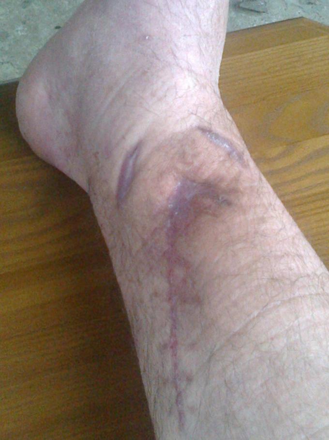 Отмечается полное заживление раны после курса радиальной ударно-волновой терапии.
