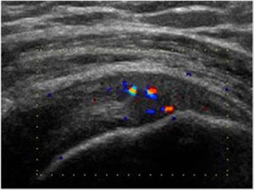 УЗИ до лечения. Патология сухожилия радостной мышцы. Видно небольшое количество сосудов.