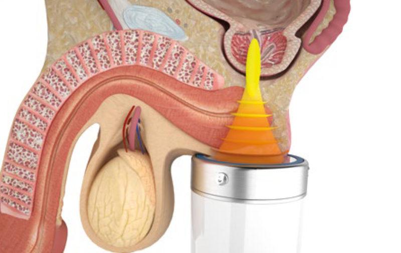 Хронический простатит лечение фокусированной ударно-волновой терапией