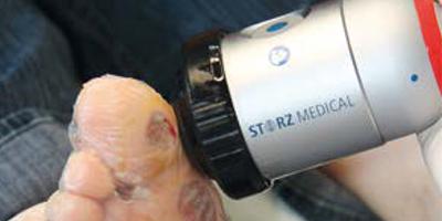 Лечение хронических язв голени и стопы в медицинском центре Аватаж