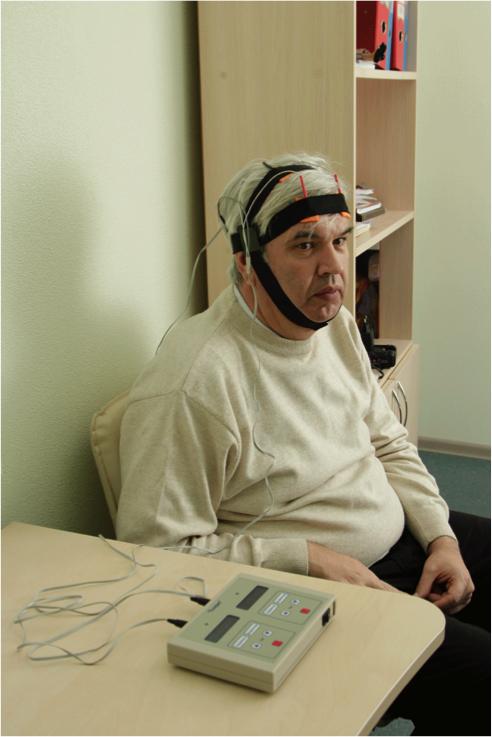 Микрополяризация мозга способствует восстановлению утраченных после инсультов функций.