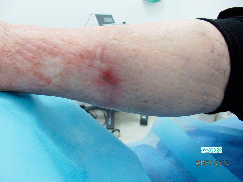 Заживление раны голени после 4 процедур ударно-волновой терапии.