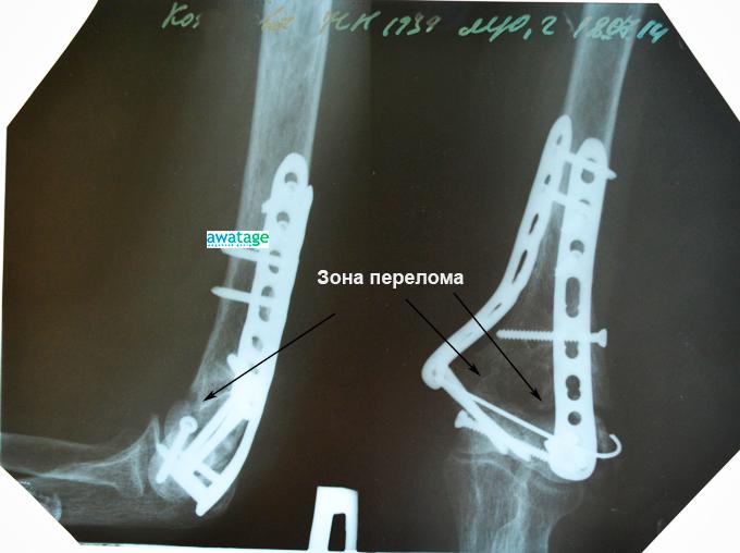 Замедленная консолидация перелома в нижней части плечевой кости. До лечения ударно-волновой терапией.