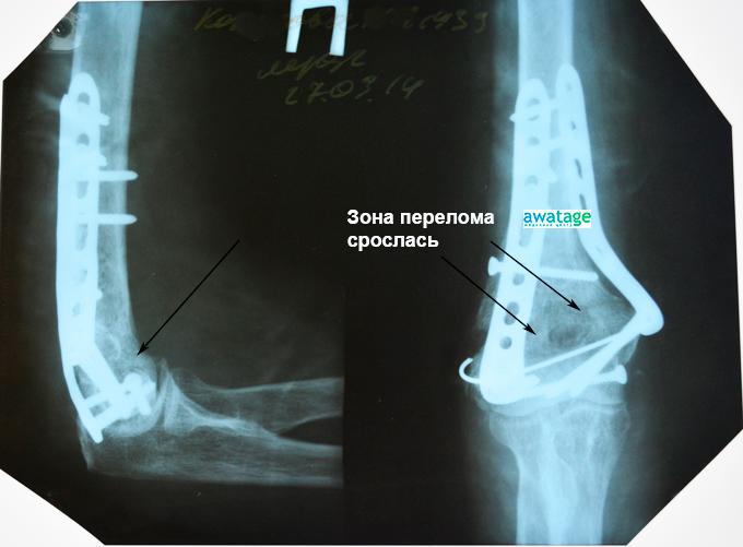 Срастание костных обломков плечевой кости после курса ударно-волновой терапии.