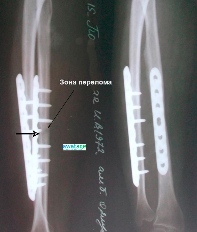 Сращение кости после проведения ударно-волновой терапии.