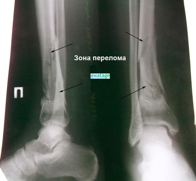 Перелом большеберцовой кости. Замедленная консолидация перелома. Состояние до проведения ударно-волновой терапии.