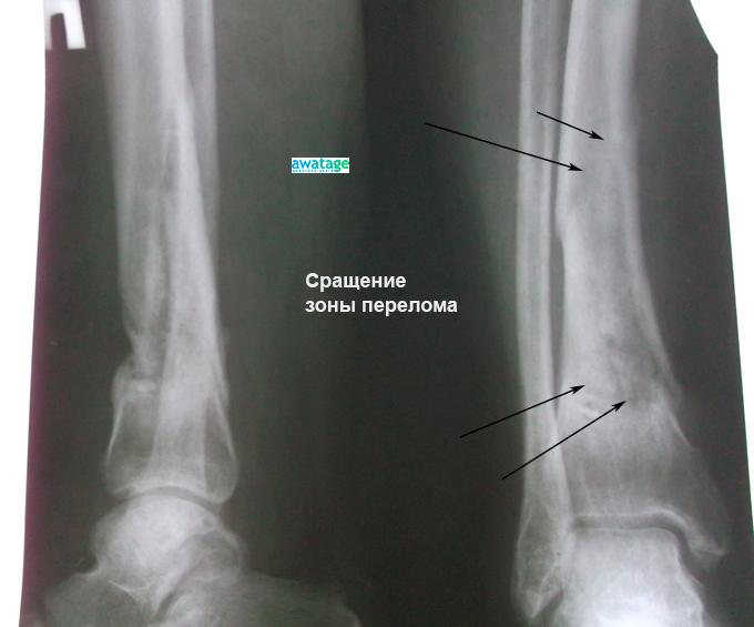 Состояние кости после проведения курса ударно-волновой терапии. Отмечается консолидация кости, исчезновение линий перелома.