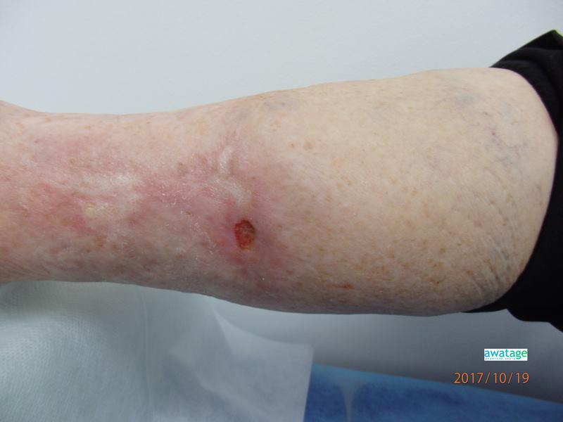 Незаживающая рана голени на фоне сахарного диабета, диабетическая стопа до проведения процедур ударно-волновой терапии