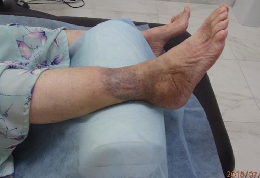"""Состояние ноги после проведенного лечения ударно-волновой терапии в медицинском центре """"Аватаж"""" в Запорожье.Полное заживление язв."""