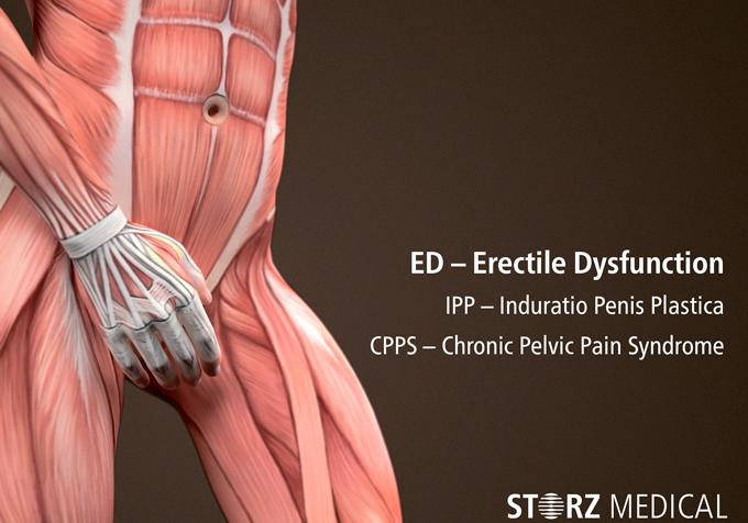 Лечение хронического простатита ударно-волновой терапией