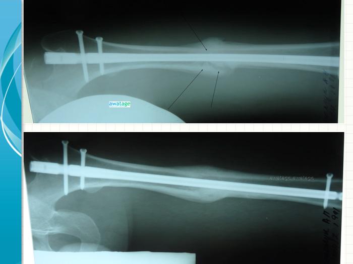 Интрамедулярный стержень не является противопоказанием для проведения РУВТ при переломе кости.