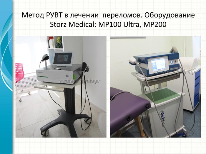 Для лечения пациентов c ЗКП использовались аппараты РУВТ Storz Medical