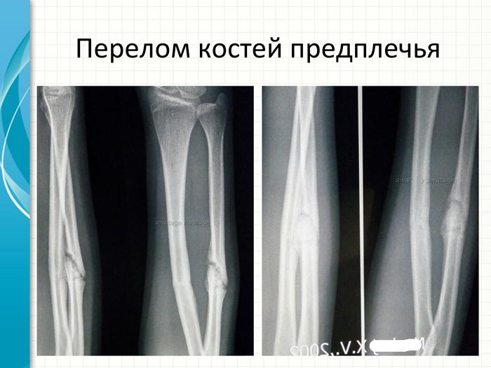 Замедленная консолидация перелома более 8 месяцев. Ударно-волновая терапия в лечении переломов и замедленной консолидации переломов