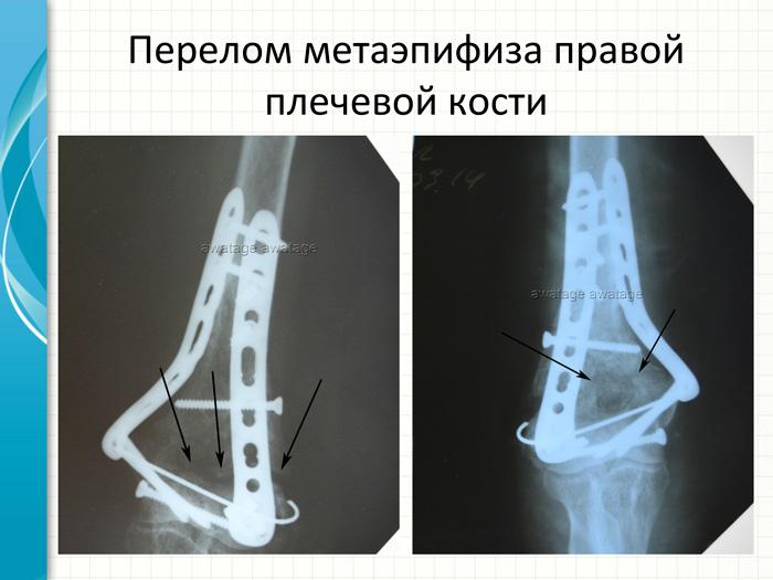 Перелом метаэпифиза плечевой кости, лечение методом РУВТ.