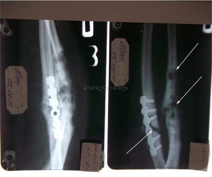 Лечение пролома у пациента с остеомиелитом