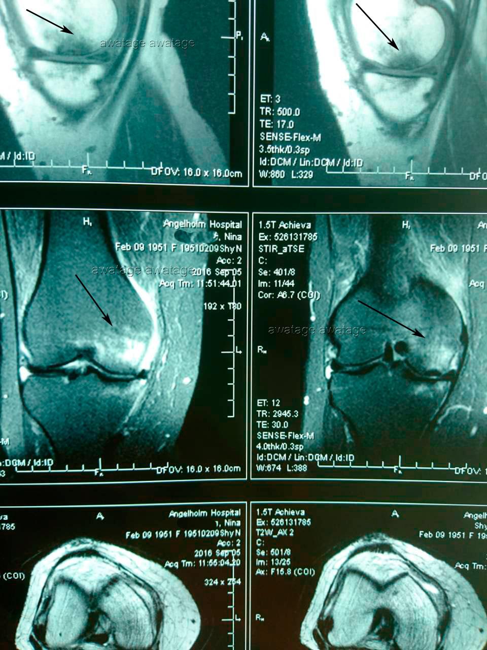 Асептический некроз кости бедра до курса лечения ударно-волновой терапии