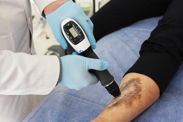 Лечение диабетической стопы в Запорожье методом ударной терапии